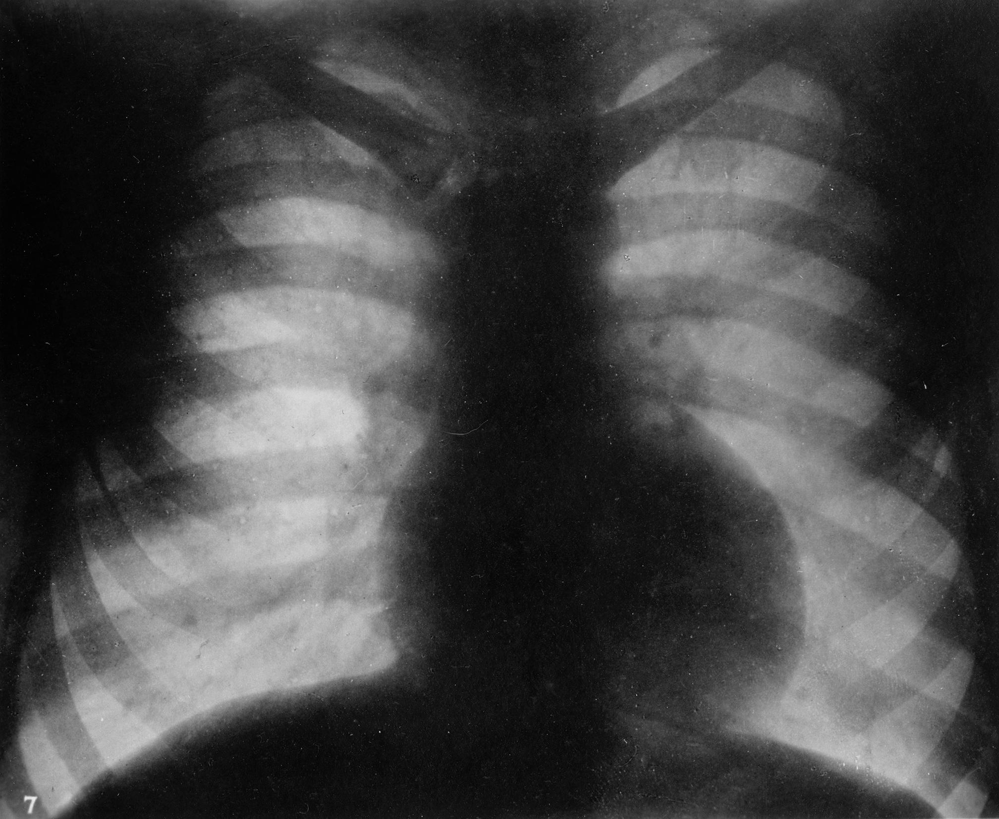 Röntgenbild eines Torsos mit Herz.